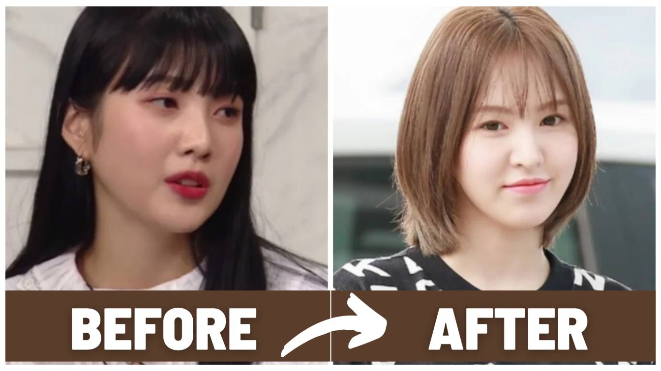 Red Velvet Wendy Before and After